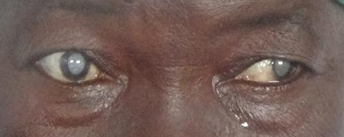 Des médecins soudanais au Gabon pour soigner des yeux malades