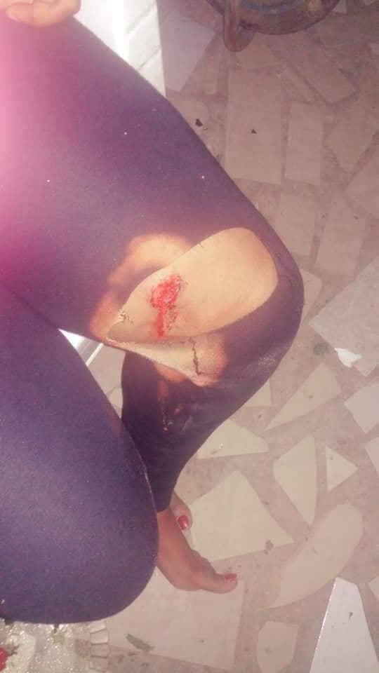 Une jeune fille agressée au couteau à IAI en plein réveillon de noël